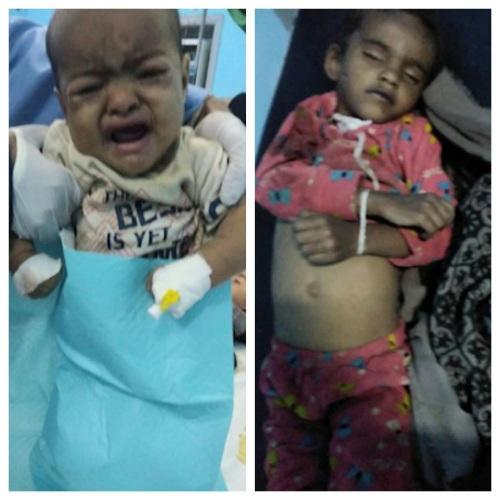 استشهاد امرأة ورجل وإصابة ستة آخرين بينهم أطفال باستهداف قوى التحالف لمنزلهم في صعدة