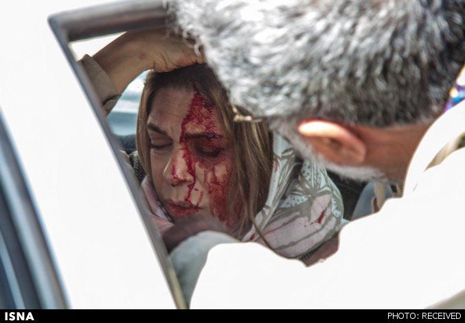 انتشار اولین عکس از گوهر خیراندیش در تصادف
