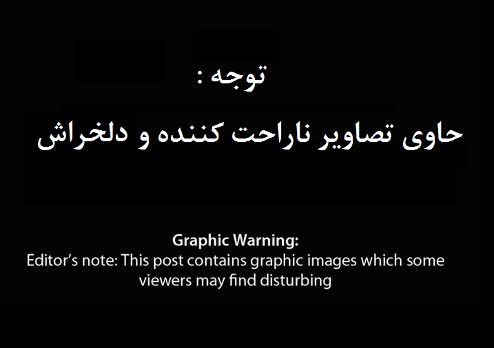 جنایات هولناک در نوار غزه ۱۸+