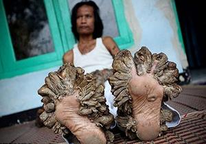 رشد درختی دست و پاهای مرد بنگلادشی