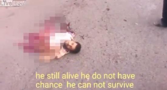 داعشی انتحاری بعد از نصف شدن زنده ماند!