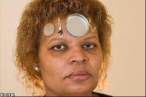 زنی که فلزات را به خود جذب میکند