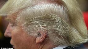 راز موهای عجیب ترامپ