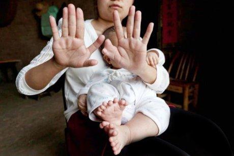 این کودک 31 انگشت دارد