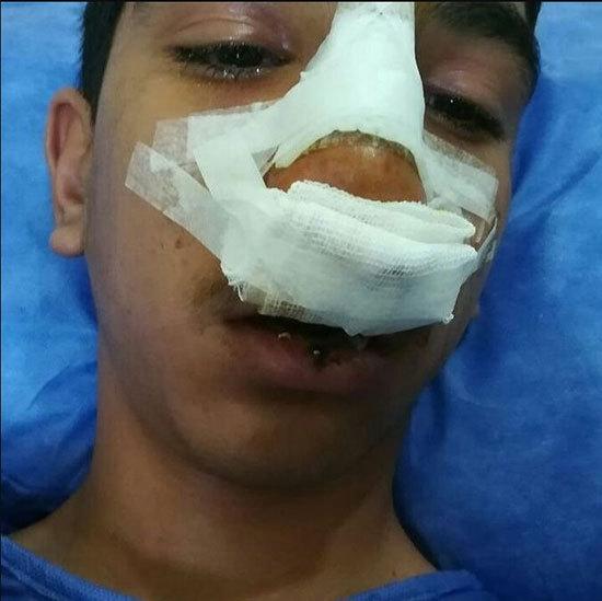 پیوند موفق پاهای قطع شده کودک ۲ ساله