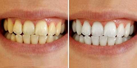 شش غذایی که دندانها را زرد میکند