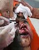 فرجام حوادث چهارشنبه سوری: ۴ جانباخته، ۲۱ قطع عضو و چند صد مصدوم!