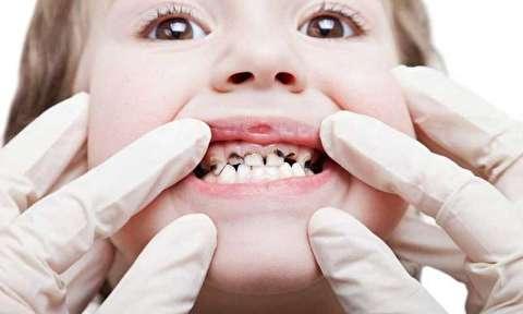 چه چیزی باعث پوسیدگی دندانها میشود؟
