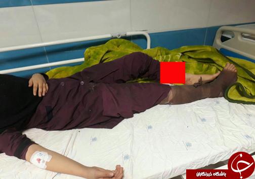 ۳ مصدوم و قطع دست بر اثر انفجار مواد محترقه در دبیرستان دخترانه!