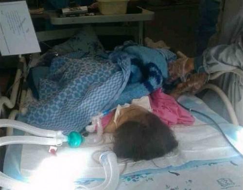 مرگ مغزی دختر ۵ ساله در ضربوشتم توسط ناپدری