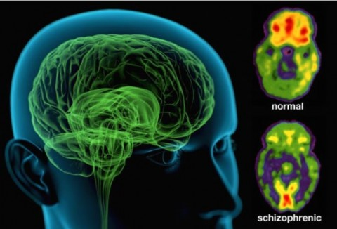 چگونه اسکیزوفرنی عمل میکند؟