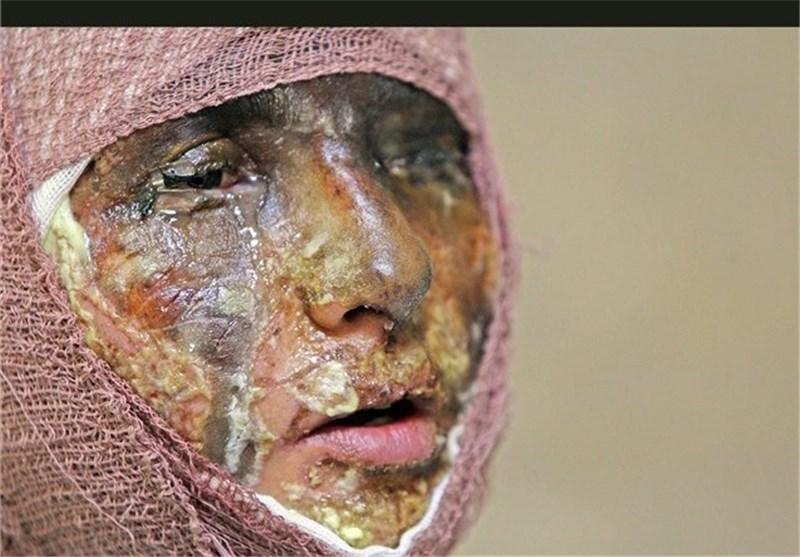 با گذشت سه سال از فجایع اسیدپاشی اصفهان، «مقصر» تراشیده شد!