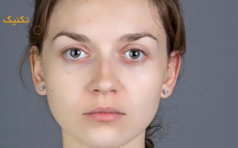 چگونه به سرعت لکهها و زخمهای صورت را در فتوشاپ حذف کنیم؟