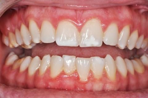 لکههای سفید روی دندان نشانه چیست؟