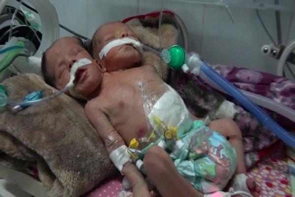 داستان غم انگیز دوقلوهای به هم چسبیده یمنی