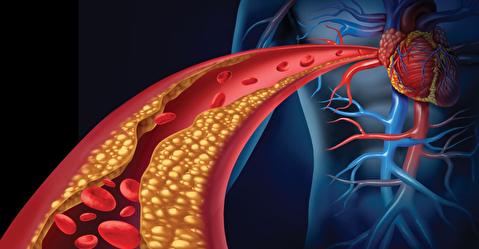 چرا فشار خون بالا برای سلامتی مضر است؟