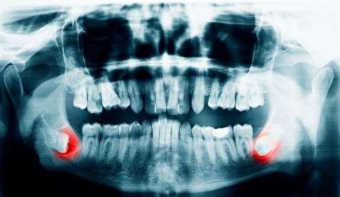چرا دندانهای عقل مشکل ساز هستند؟