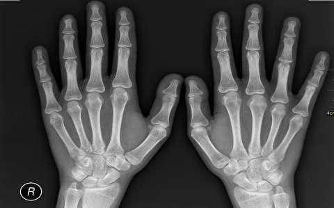 اشعه ایکس چگونه عمل میکند؟