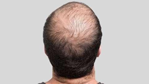چرا موی بعضی افراد میریزد؟
