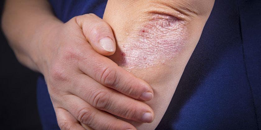 همه چیز درباره صدف شایعترین بیماری پوستی