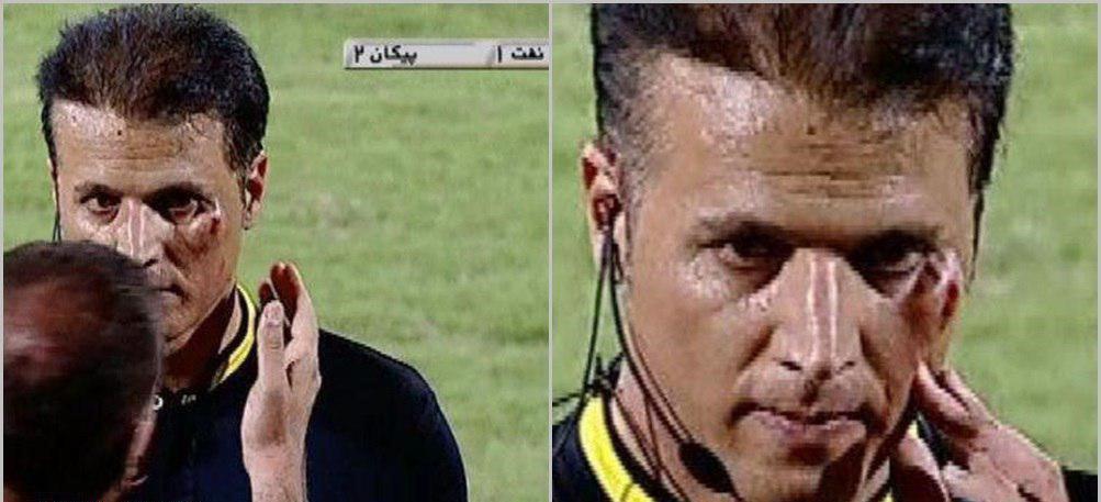 فاجعه در ورزشگاه آبادان و صورت خونین داور+عکس