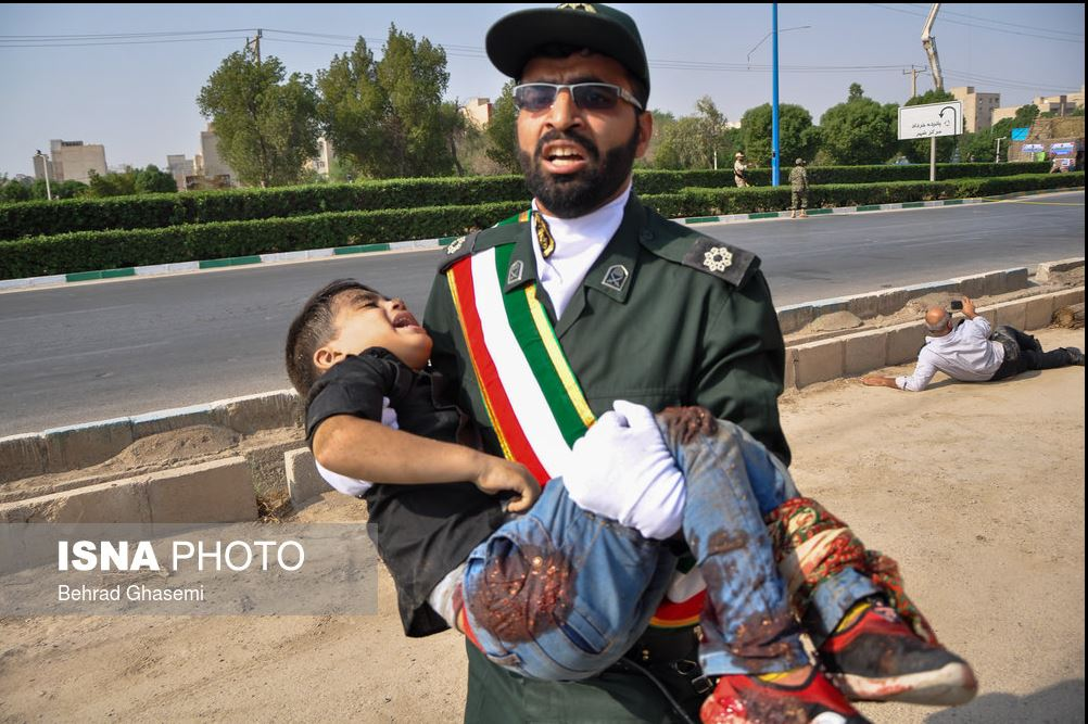 کودک زخمی شده در حمله تروریستی