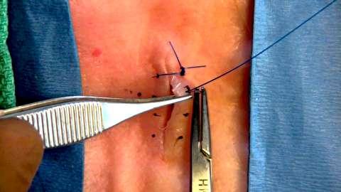 روشهای بخیه و گره جراحی