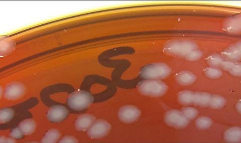مقاومت ویروسها در برابر آنتیبیوتیک