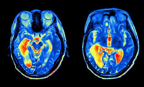 تصور نادرست در مورد سمت راست و چپ مغز