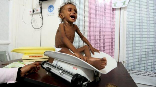 شمارش معکوس برای پایان جنگ در یمن/ پذیرش گفتگوی های صلح سازمان ملل توسط امارات