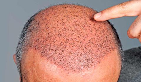 روند کاشت موی سر مردان چگونه است؟
