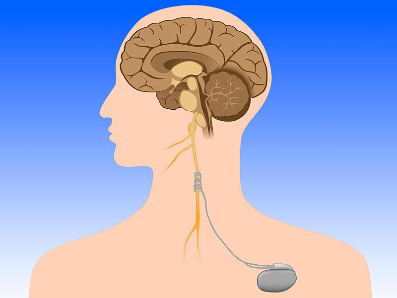 با طولانی ترین عصب مغزی بیشتر آشنا شوید