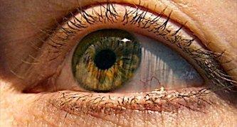 علائم و خطرات «سکته چشمی»