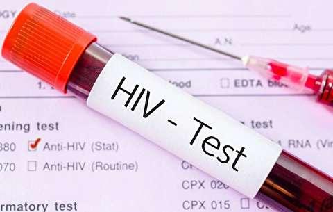 برخورد با مبتلایان به ایدز شبیه طاعونزادهها