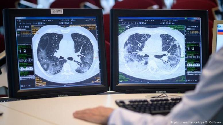 تخریب ریه علامت دارد یا خاموش است؟