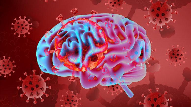 بیماری کووید ۱۹ با نشانه سکته مغزی ظاهر میشود