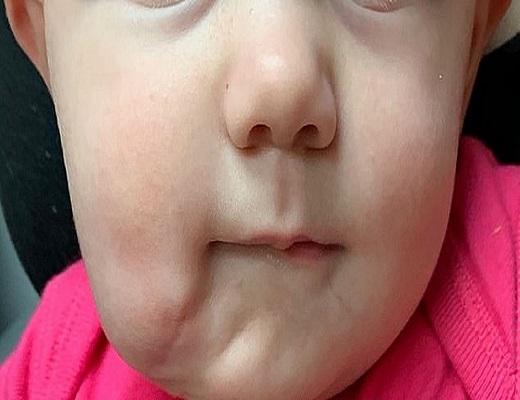تولد یک نوزاد با دو دهان مجزا