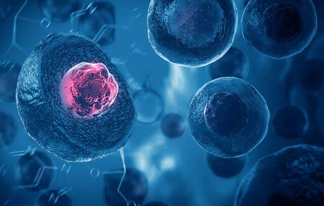 درمان یک نوزاد شش روزه با پیوند سلولهای بنیادی