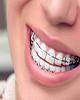 ارتودنسی یا orthodontic چیست؟