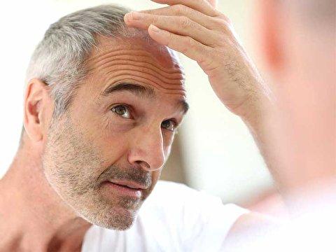 انواع روش درمانی ریزش مو برای مردان