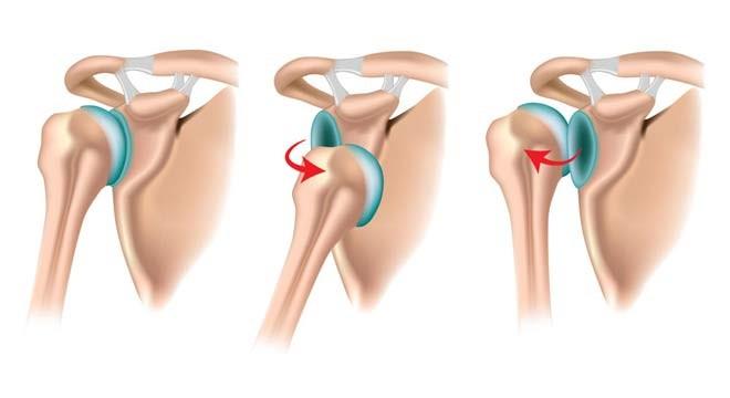 علائم و درمان دررفتگی مفصل شانه
