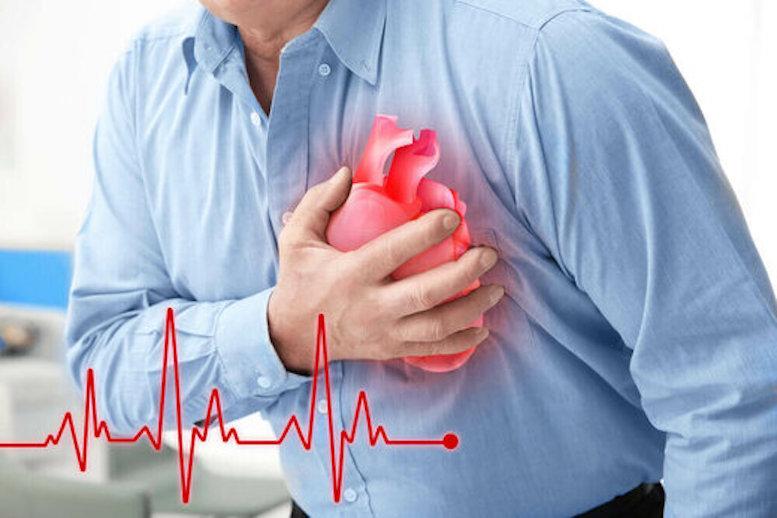 از کجا بفهمیم دچار حمله قلبی شدهایم؟