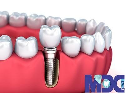 ایمپلنت دندان و هرآنچه که باید در مورد آن بدانید