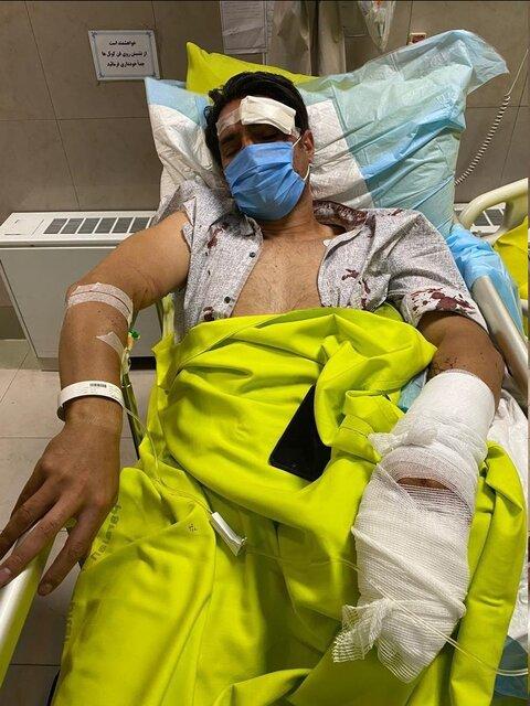 یک انگشت بازیکن معروف استقلال در تصادف قطع شد