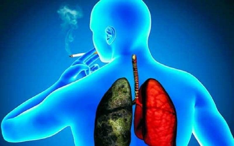ترک دخانیات؛ بهترین راه برای رهایی از (COPD)