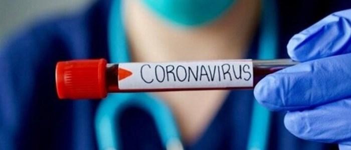 فهرست آزمایشگاههای تشخیص کرونا اعلام شد