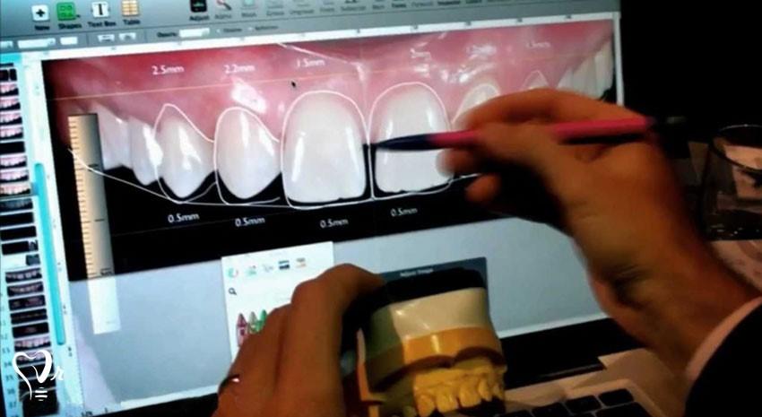 طراحی لبخند دیجیتال / جدیدترین تکنولوژی لمینت