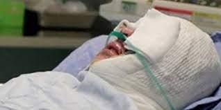 هولناک ترین اسید پاشی به مادر و دختر