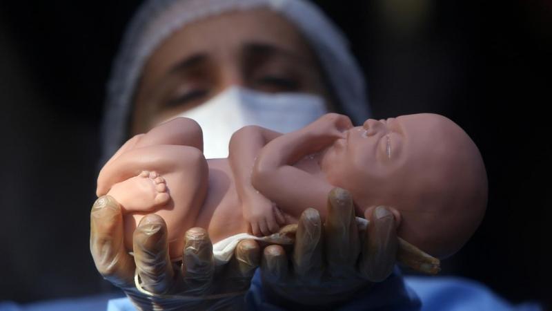 قوانین موضوعه درباره سقط جنین غیرسالم چه می گویند؟