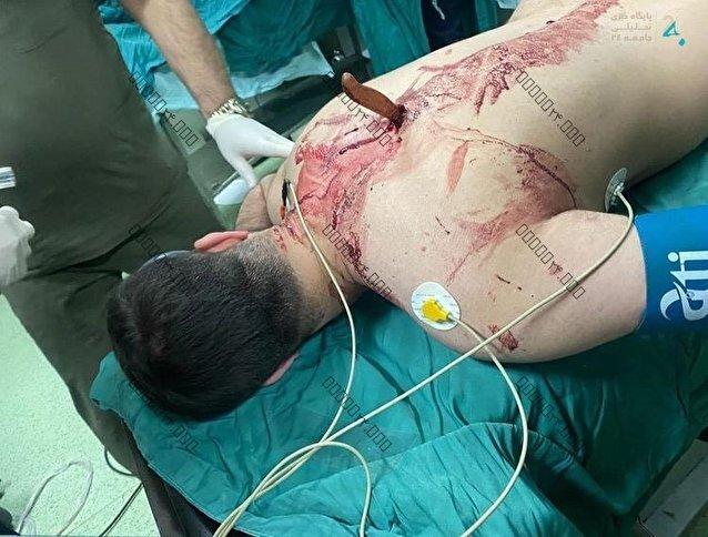 حمله با چاقو به پرستارِ یکی از بیمارستانهای تهران